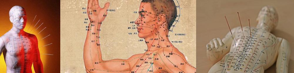 kínai akupunktúra