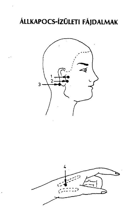akupresszúra ízületi fájdalmak esetén enyhítse az ujjízületi fájdalmakat
