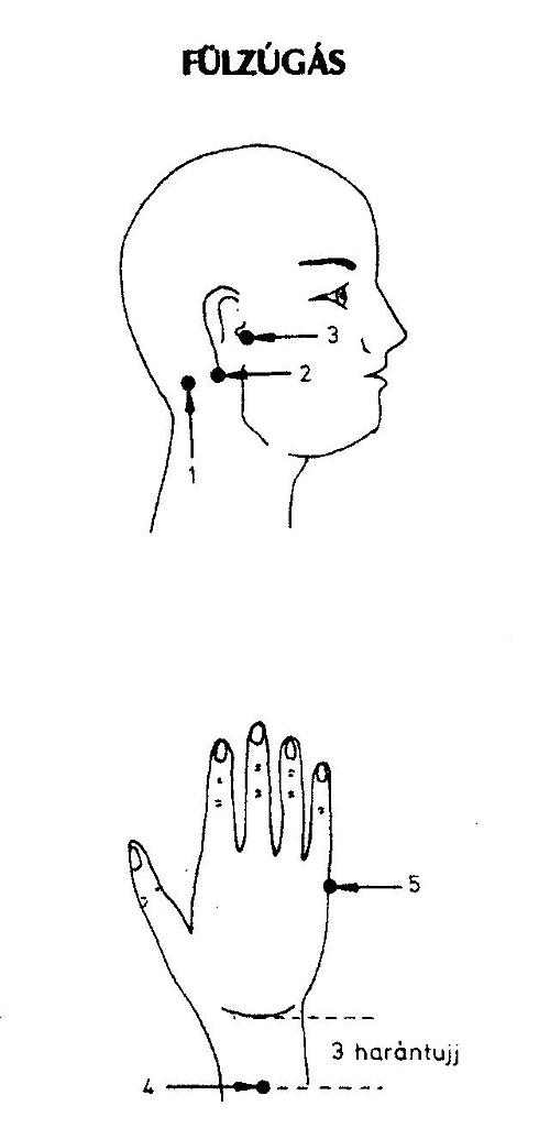 fülzúgás lelki oka kínai medicina