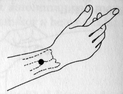 pikkelysömör akupunktúra