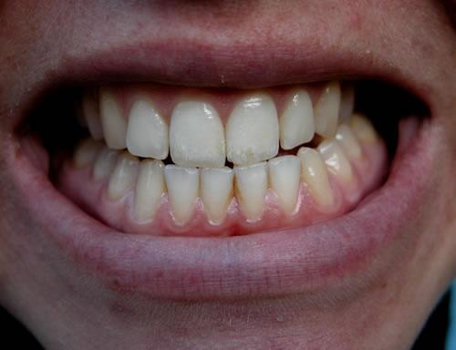 A fogcsikorgatás (bruxizmus) okai és kezelése