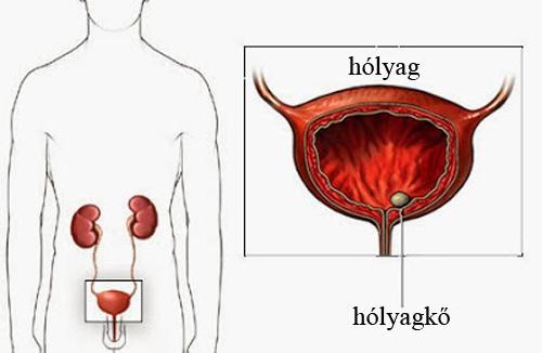 Hiperaktív hólyag tünetei és kezelése - HáziPatika