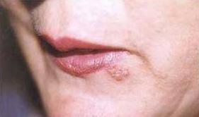 herpesz lelki okai kinai medicina kiütés a kezeken piros foltok formájában fotó
