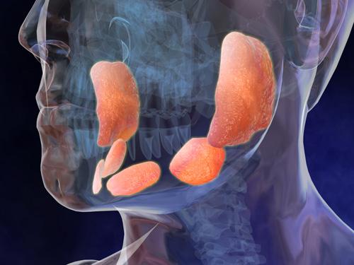 Ritka tumor: a nyálmirigyrák