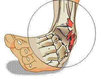 lábfej sérülés lelki okai