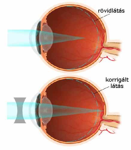 javult a Bates látása arcüreggyulladás homályos látás