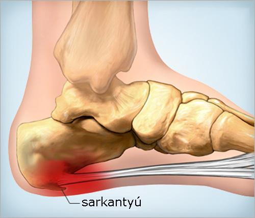 térdízületi cipő artrózisa