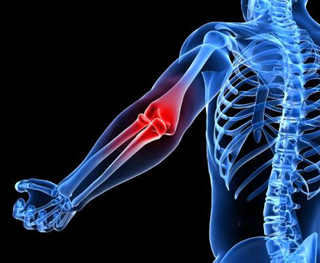 Új eljárás teniszkönyök gyógyítására - lágyrész hialuron injekció