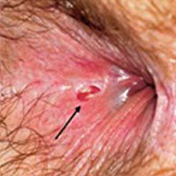 Treatment of anal fissure