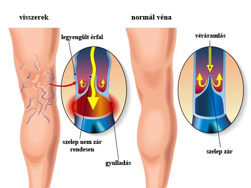 artroszkópos vállízület kezelés chondroxid kenőcs vagy gél ízületekhez