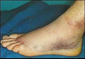 nőivilág. Miért fáj a bokám? A boka betegségeinek lelki háttere