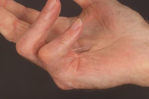 Pszichoszomatika és a bőrbetegségek