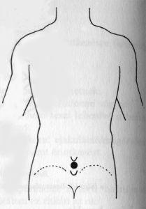 akupresszúra erekciós férfiaknak